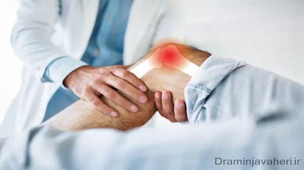 درمان شکستگی زانو با جااندازی