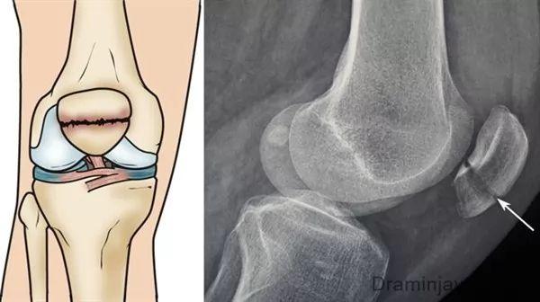 شکستگی زانو