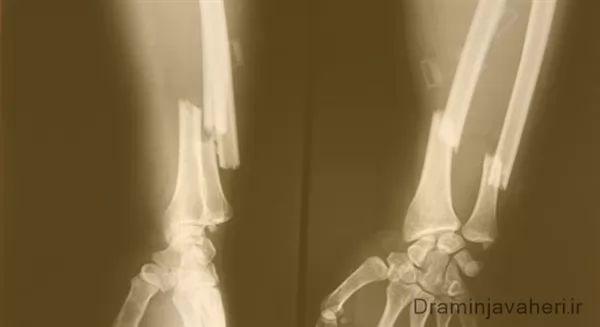 عکس رادیوگرافی شکستگی استخوان