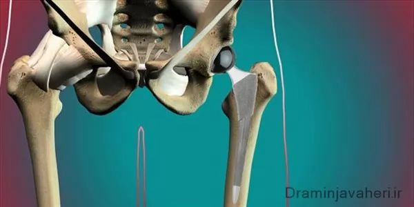 درمان آرتروز لگن با جراحی