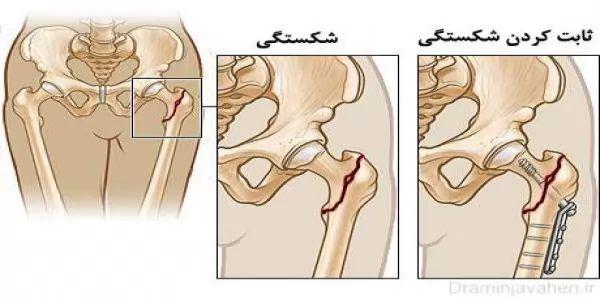 ثابت کردن استخوان ران شکسته