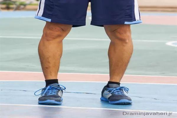 پای پرانتزی در ورزشکاران