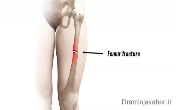 درد ران پا به خاطر شکستگی ران