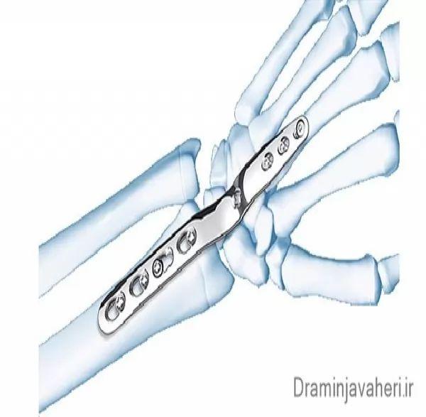 جراحی آرتروز دست
