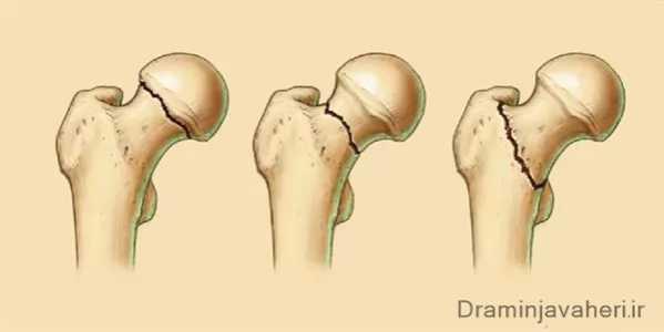 انواع شکستگی مفصل هیپ