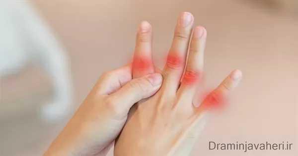 علائم بیماری نقرس در انگشتان دست