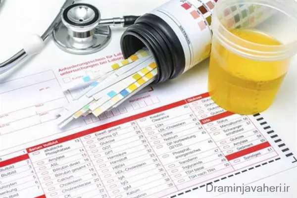 تشخیص بیماری نقرس با بررسی آزمایش ادرار