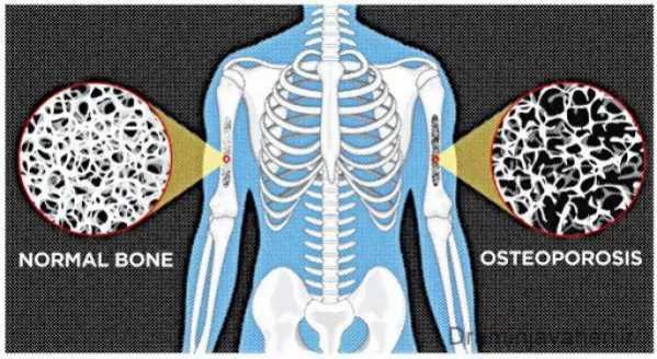 تراکم استخوان در فرد مبتلا به پوکی استخوان
