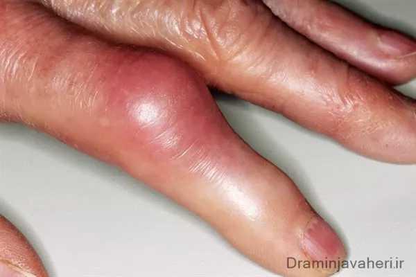 علائم روماتیسم مفصلی در انگشتان دست