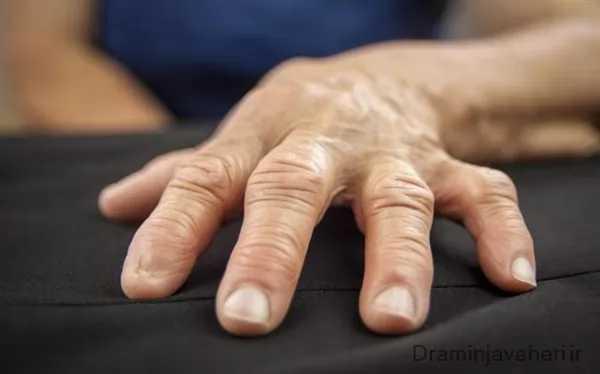 آرتریت انگشتان در سالمندان