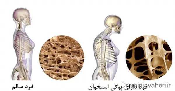 استخوان سالم و استخوان مبتلا به پوکی استخوان زودرس