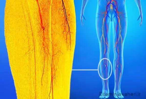 علت در استخوان ساق پا به دنبال مشکلات عروقی