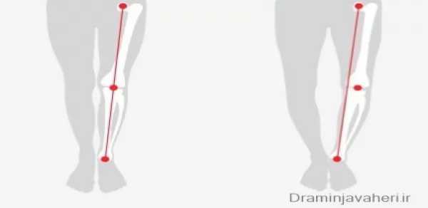 عوارض پای پرانتزی