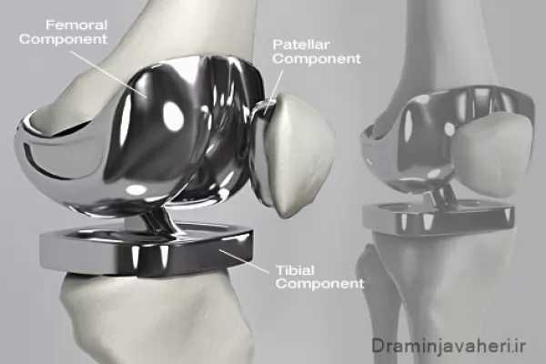 پروتز مفصل مصنوعی