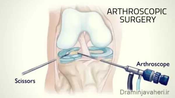 جراحی آرتروسکوپی زانو