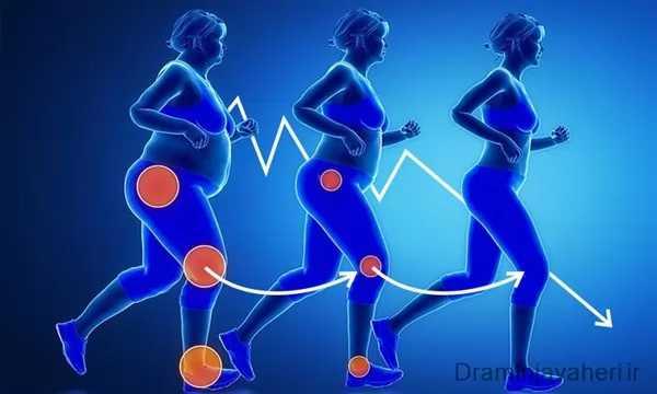 چاقی و زانو درد