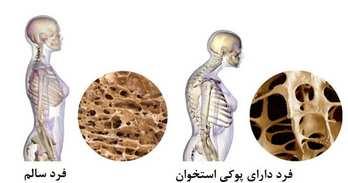 دلایل پوکی استخوان
