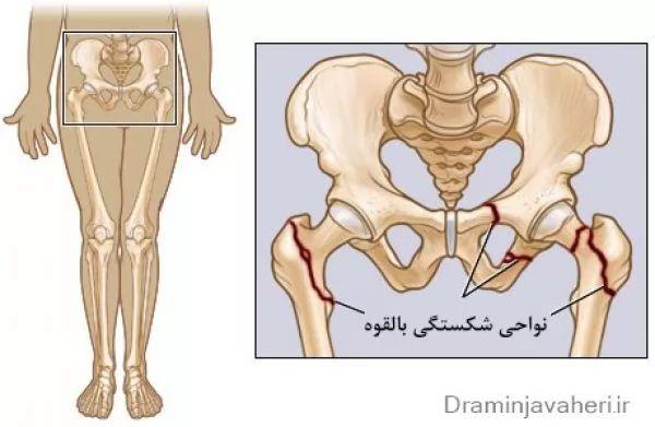 درد لگن در زنان به دنبال شکستگی مفصل