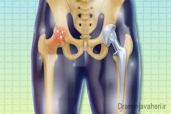 کاربرد جراحی آرتروپلاستی مفصل هیپ