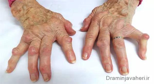 آرتروز انگشت دست